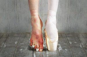 Balerina- artroza sklepa